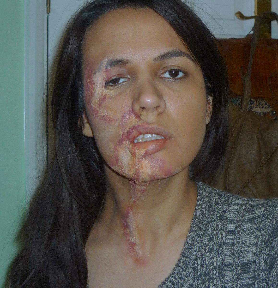 Acid Burned Face