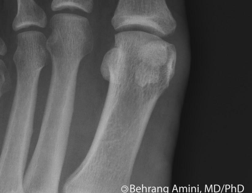 Roentgen Ray Reader: Bipartite Sesamoid vs Fractured Sesamoid