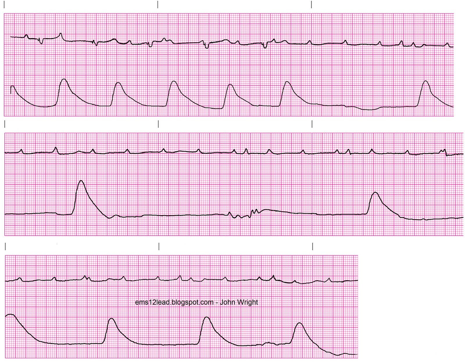 picture relating to Printable Ekg Strips called Cardiac Strips Photographs - Opposite Look