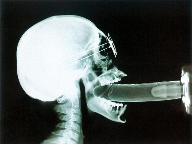 онлайн порно фото рентгенов остается бедным