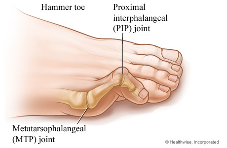 Little Toe Pain Causes