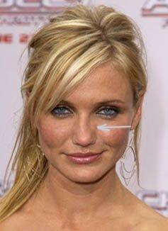 Jabber Jaw Surgery Blog: Nose problems