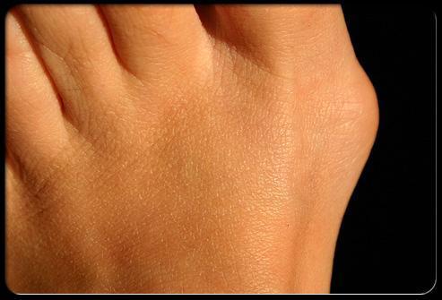 bunion hard skin