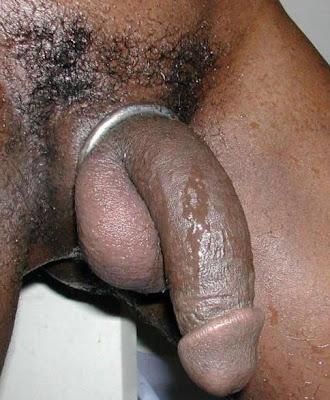 why is my flaccid penis huge