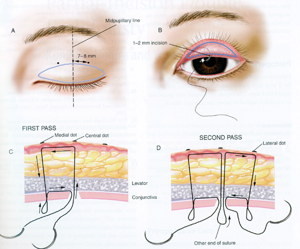 Incision Vs Suture Eyelid Surgery Asian 36