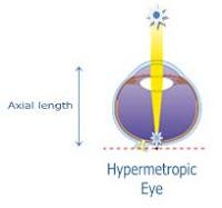 hyperopia 2)