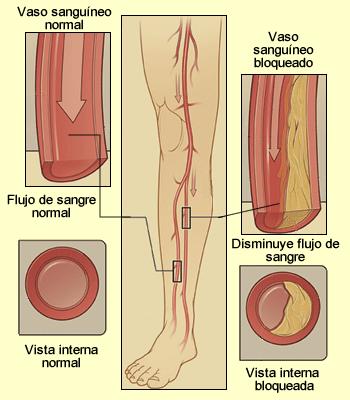 Vista interna de los vasos sanguíneos normales y anormales en las piernas