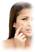 pimple-dark-spots-treatment