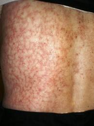 toasted-skin-syndrome-appearance