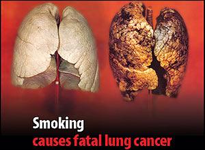 Prirodnim putem do zdravlja bez cigareta i prebrodite pušački kašalj