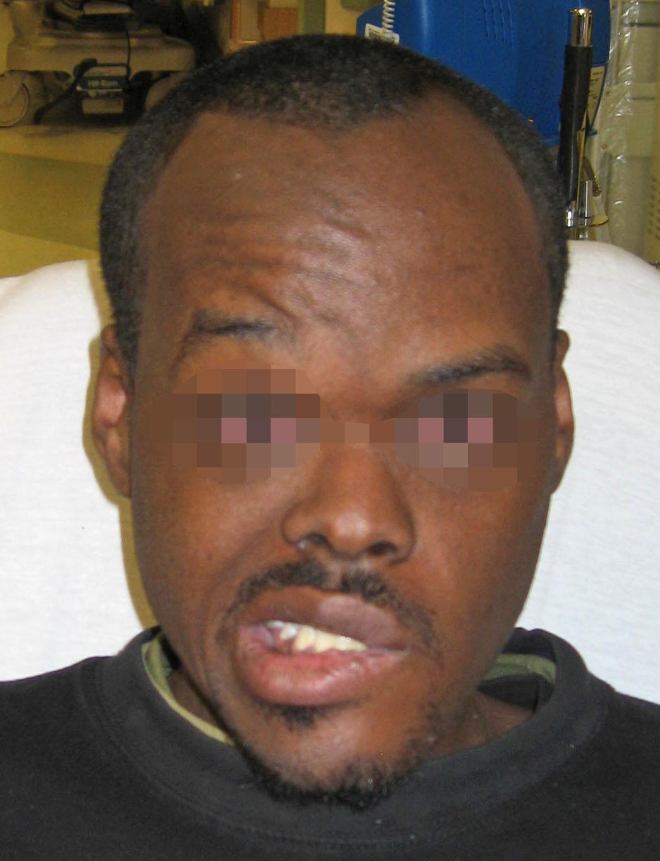 Left Facial Paralysis 92