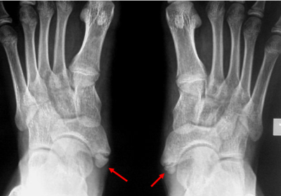 The Third Eye Radiology Site Os Tibiale Externum Accessory Navicular Bone Early immobilization, surgical excision if immobilization fails. the third eye radiology site