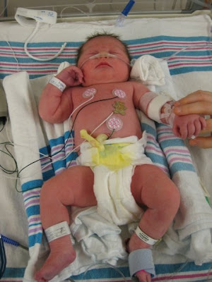 The Nicu What To Expect The Baby Standard A Self Help