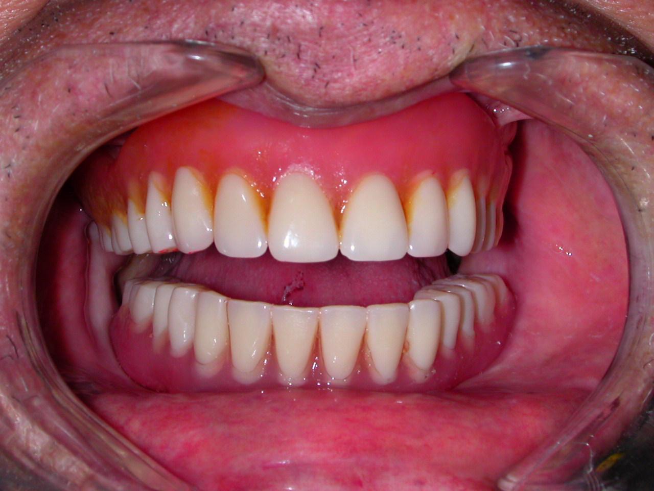 Dental Implantology: CASE OF FULL LOWER FALSE TEETH ...