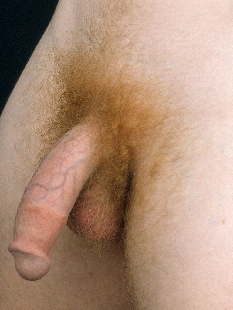 guys with blonde pubic hair