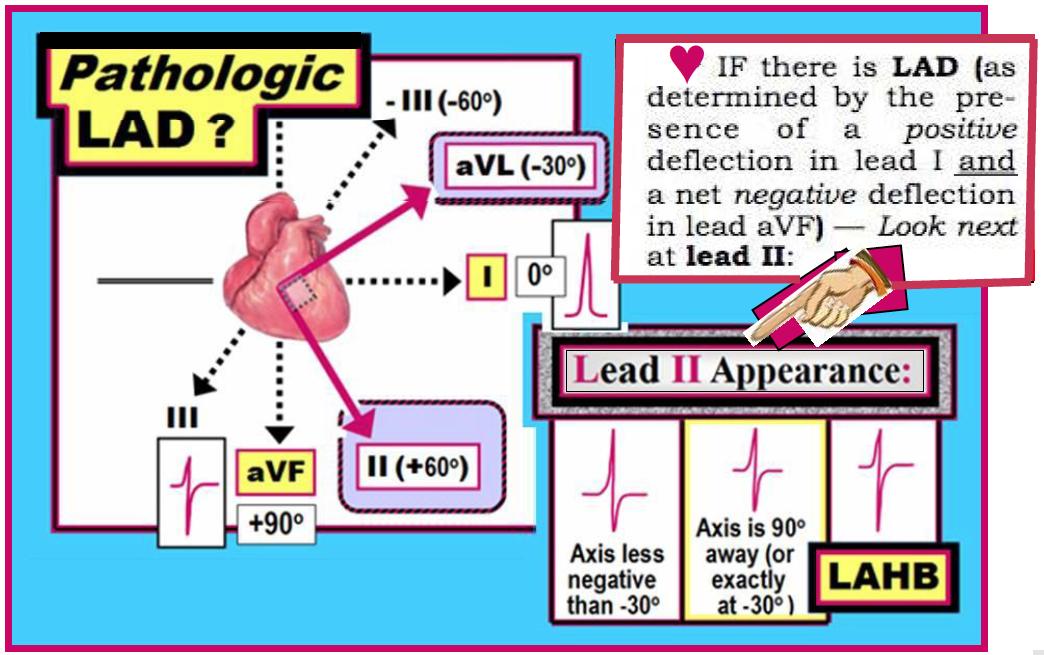Heart anatomy for dummies