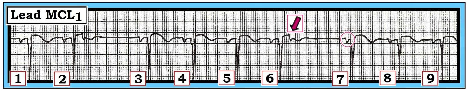 Figure 3 Block Diagram Of Electrocardiogram