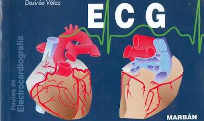 velez ecg pautas electrocardiograma