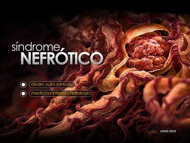 PDF NEFRITICO EN PEDIATRIA SINDROME