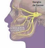 Dolor de cabeza persistente sobre la oreja derecha