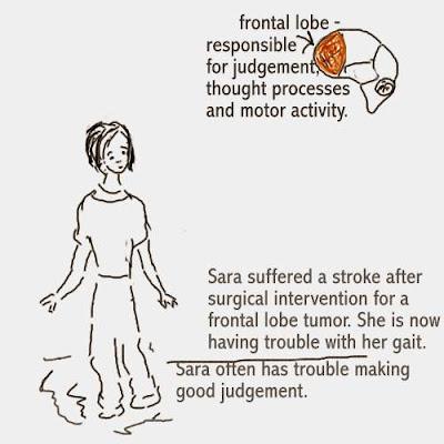 Dear Nurses: TRAUMATIC BRAIN INJURY