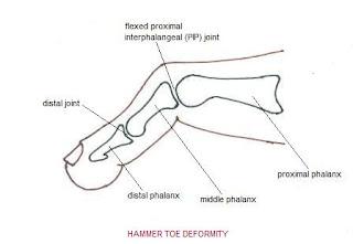 Foot Relief: Mallet Toe