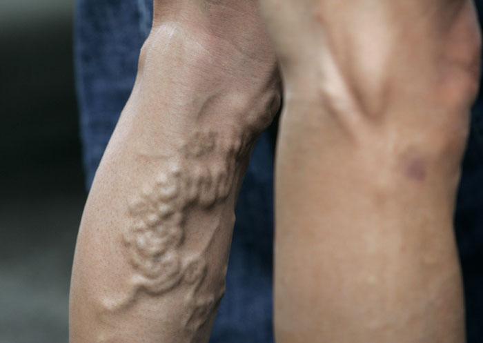 bulto brazo biceps