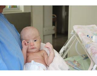 Cirugía de derivación de hidrocefalia infantil