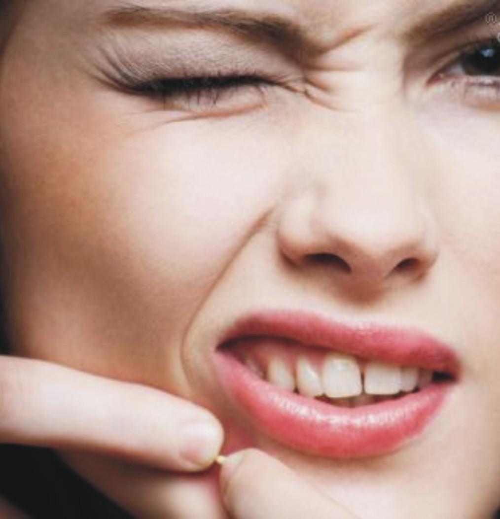 19 Cara Menghilangkan Noda Flek Hitam Bekas Jerawat Di: Yunita's Blog: 5 Cara Menghilangkan Bekas Jerawat