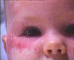 Çocukta Kızartılı Lupus