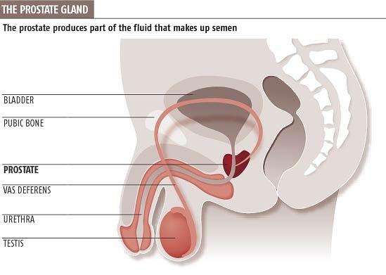 Prostate cancer masturbation study