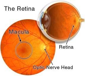 Ablasi retina yaitu terlepasnya syaraf mata dari lapisan di bawahnya ABLASI RETINA