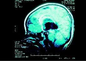agenesia del corpo calloso totale e isolata