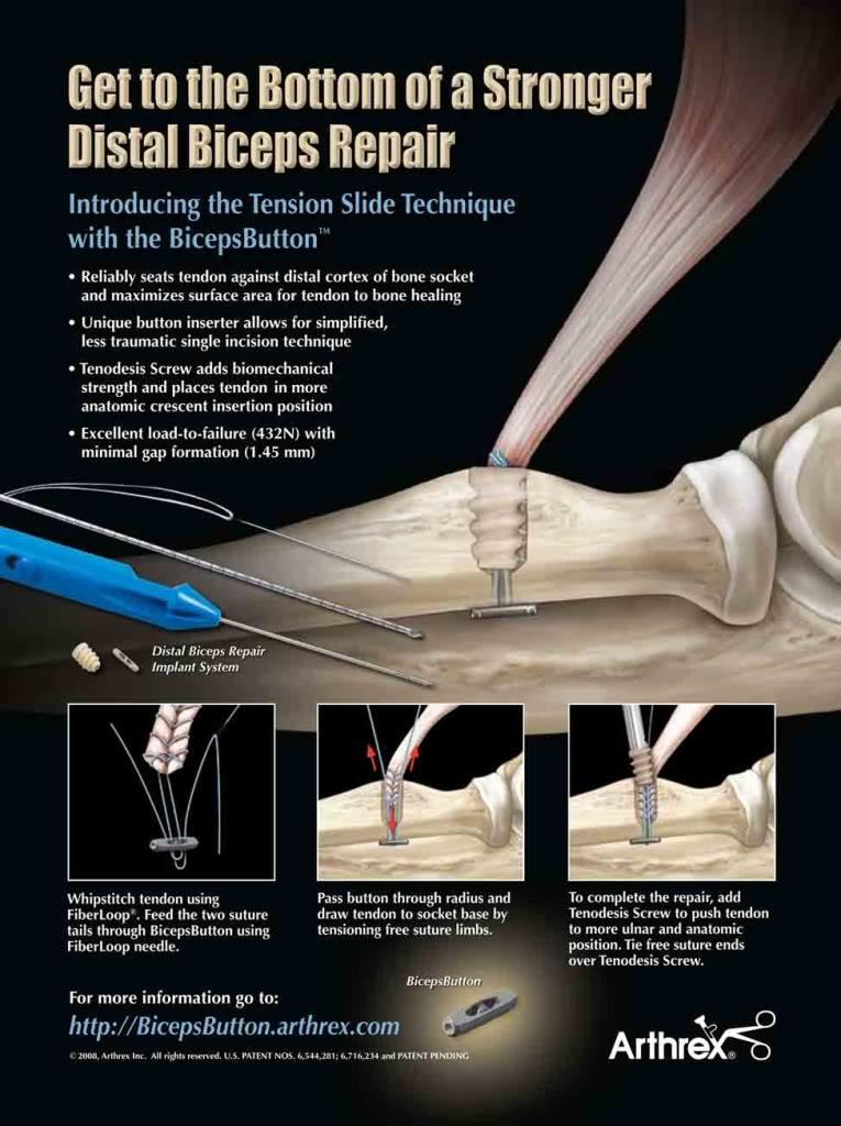 Pebbles To Peaks Distal Biceps Tendon Rupture