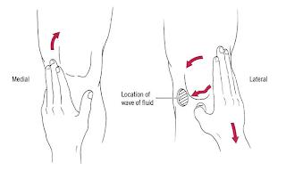 Sport Injuries and Wellness Ottawa: Orthopedic Test of The