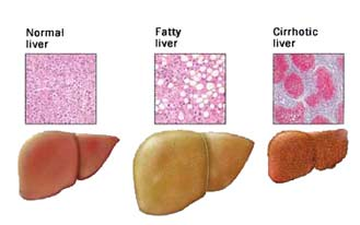 Hcv New Drugs Fatty Liver 70 To 90 Of People With