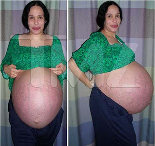 Woman With Sextuplets 91