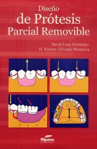 Sitio De Odontologia: Libro Protesis Parcial Removible @tataya.com.mx