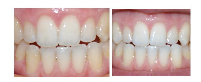 whitestrips before or after brushing