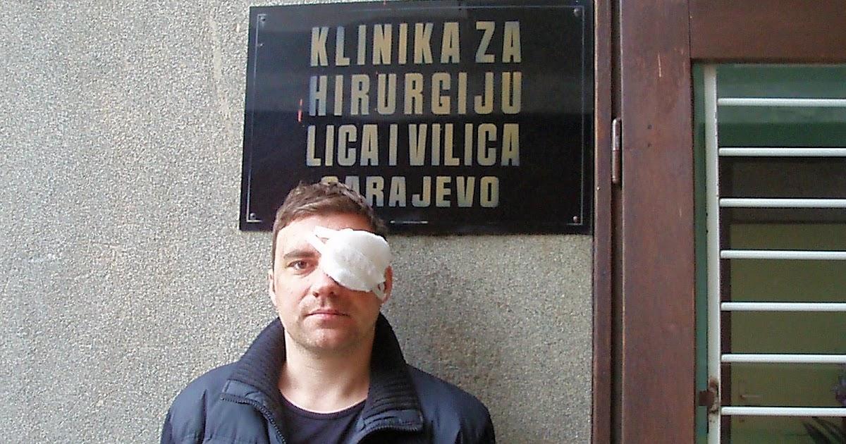 SEX ESCORT Sarajevo