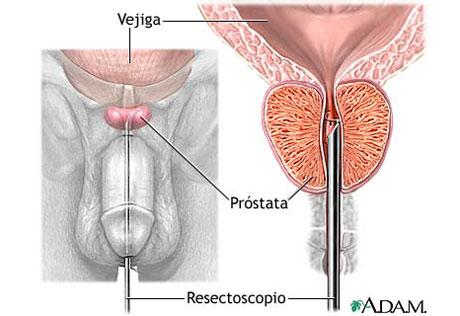 puntos de reflexología para problemas de próstata