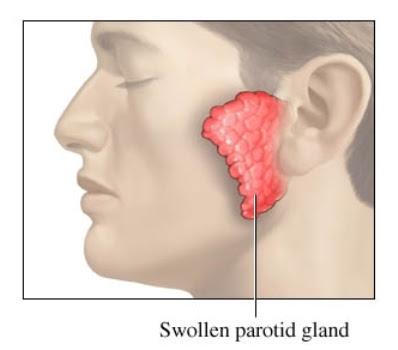 inflamacion aguda de las glandulas parotidas