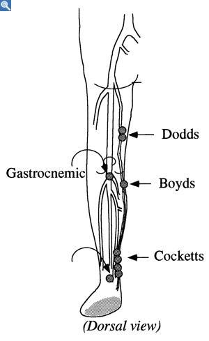 gastrocnemius artery - photo #33