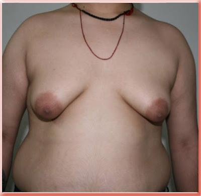 Grade IV Gynecomastia