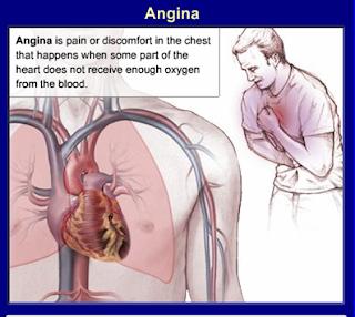 Angina Blue Around Lips 63