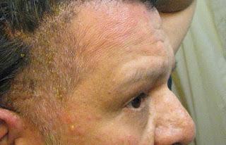 "... PPD in ""Just for Men"" hair dye: May 31,2009 hair dye allergy reaction"