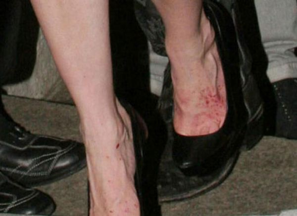 Celebrity Hot Pics Celebrities With Ugly Feet