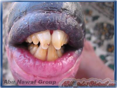 bibir teraneh