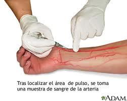 Interpretacion gasometria arterial