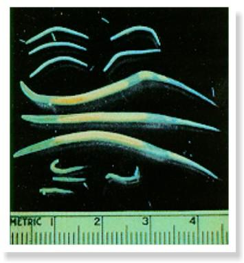 cât de des să dai copiilor viermilor removal of papillomas